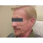 Lipoatrophy treatment: before Sculptra - left profile