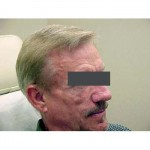 Lipoatrophy treatment: before Sculptra - right profile