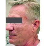 Lipoatrophy treatment: 12 months after Sculptra treatment - left view