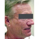 Lipoatrophy treatment: 12 months after Sculptra treatment - right view