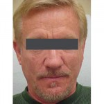 Lipoatrophy treatment: 2 years after Sculptra treatment -  front view