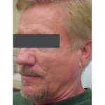 Lipoatrophy treatment: 2 years after Sculptra treatment -  left view