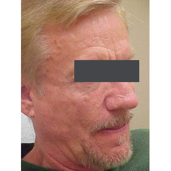 Lipoatrophy treatment: 2 years after Sculptra treatment - right view