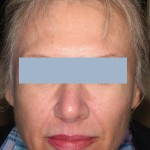 Patient after 1 Sculptra treatment
