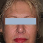 Patient after 2 Sculptra treatments