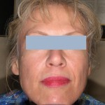 Patient before Sculptra treatment
