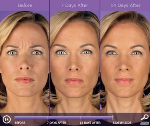 Botox: before and after photos - patient 1