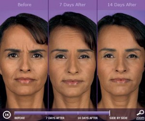 Botox: before and after photos - patient 2
