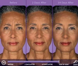 Botox: before and after photos - patient 3