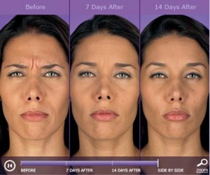 Botox: before and after photos - patient 4