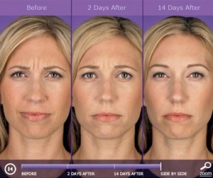Botox: before and after photos - patient 6