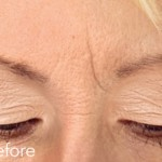 Belotero dermal filler - before and after photos of frown lines enhancement