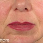 Belotero dermal filler - before and after photos of nasolabial folds enhancement