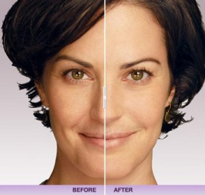 Before and After Juvederm: Jill