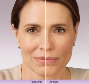 Before and After Juvederm: Marie