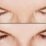 Eyelash Growth with Latisse: before and after photos