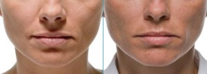 Radiesse: wrinkle filler. Oral comissures before and after photos