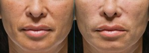 Radiesse wrinkle filler: smile lines correction
