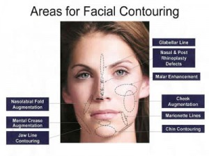 Areas for Facial Contouring with Radiesse
