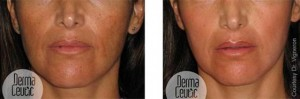 Skin Peel: Spot Peel home skin peel before and after photos - 2
