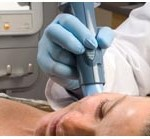 Thermage: skin tightening and contour